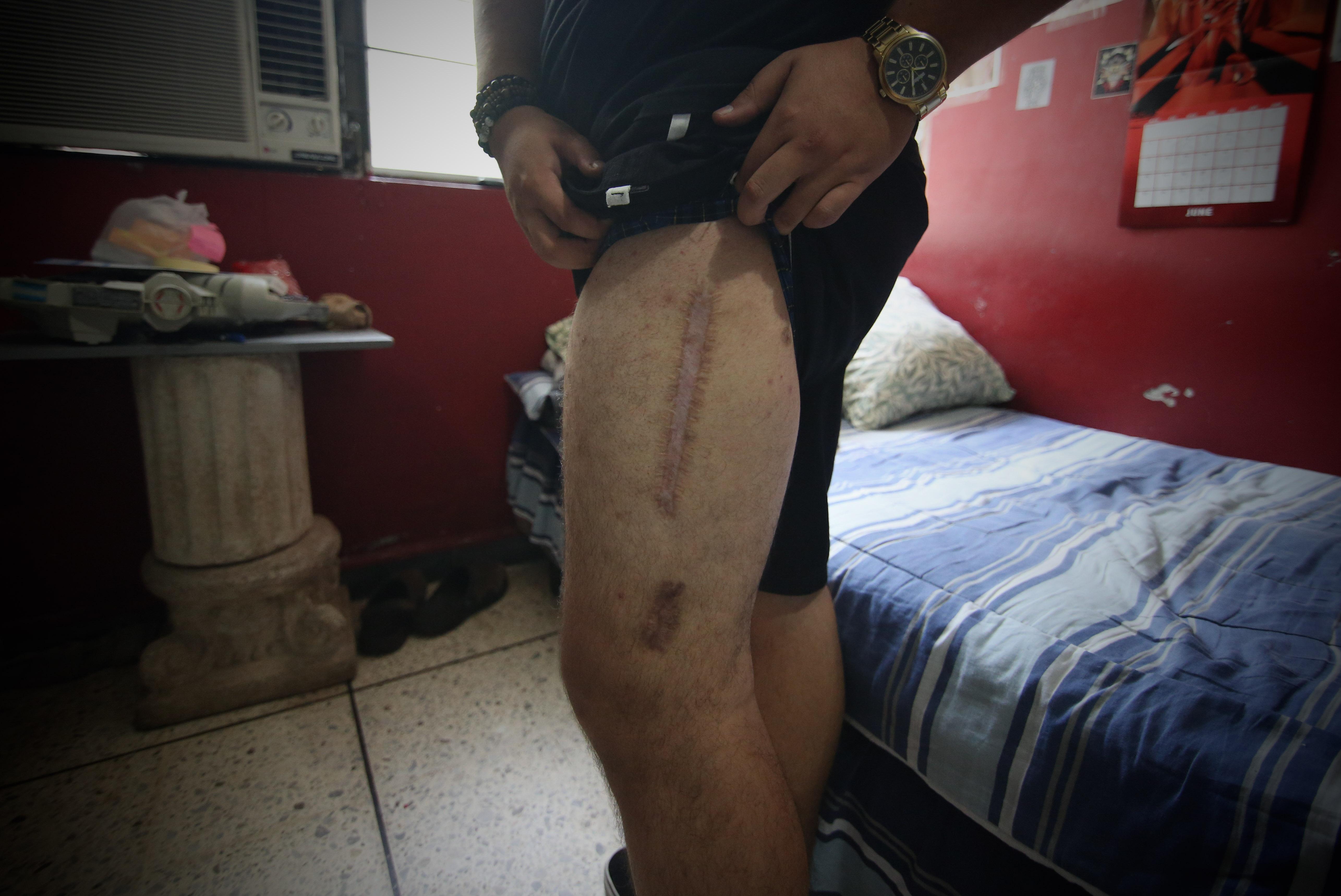 Foto D1. Miguel Lemus. Una de las balas atravesó su pierna.