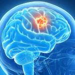 tumor-cerebral-2