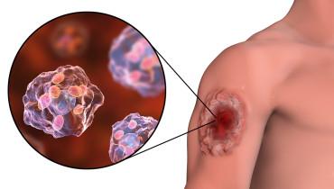 Ilustración de las úlceras producidas por la leishmaniasis.