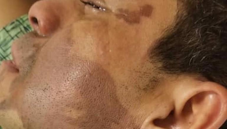 Lanzan ácido al rostro de inmigrante hispano
